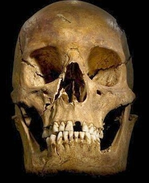 The skull of Richard 111